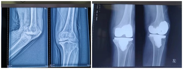 手术摄片.jpg