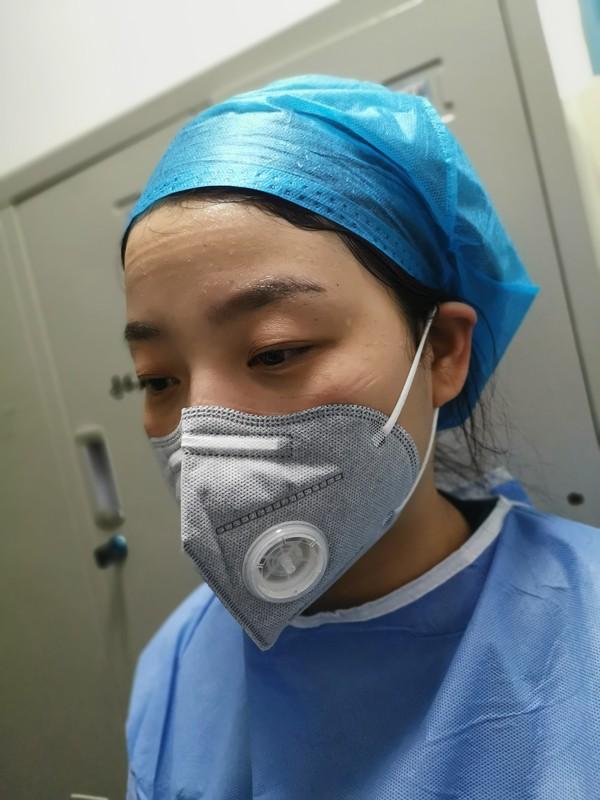 隔离病区护士脸颊上布满了口罩的勒痕,.jpg
